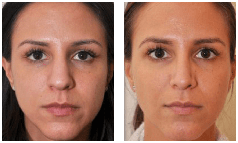 Facial Plastic Surgeon New York