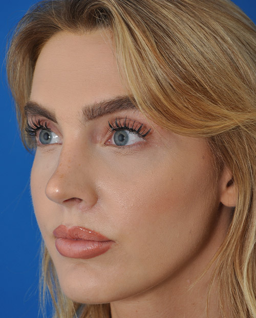 Best Rhinoplasty New York